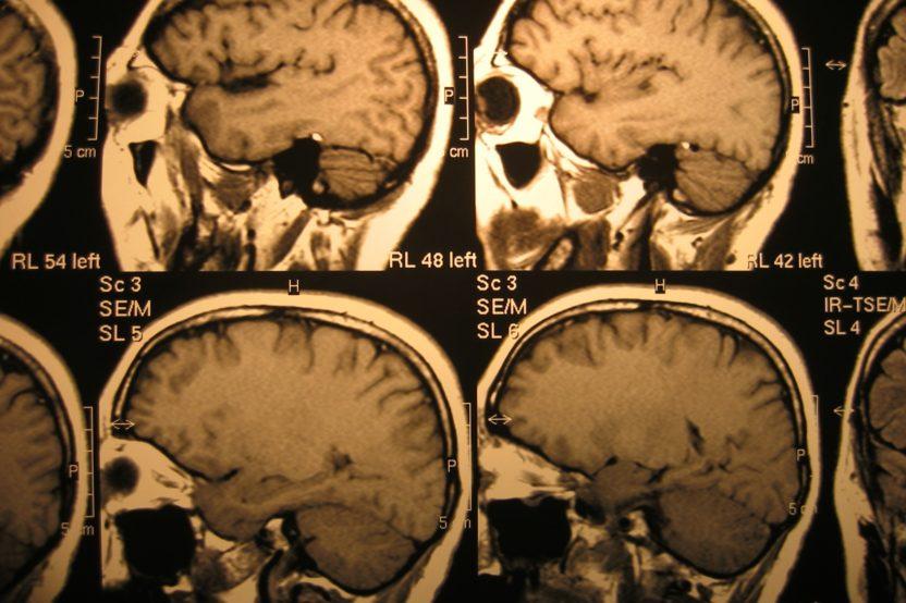 Migraine Blend Chronicles, Week 2: